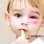 Первые действия при укусе осой вашего малыша