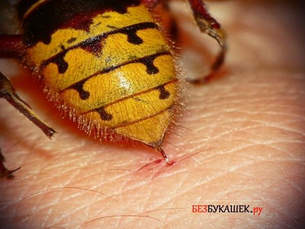 Как снять отек от укуса осы в домашних условиях