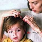 Лучшие средства для борьбы с педикулезом у ребенка