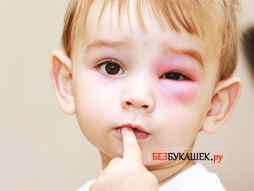 Ребенок после укуса осой