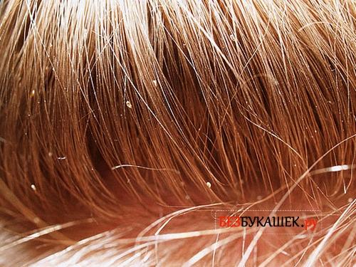 Вот так выглядят гниды головных вшей на женских волосах