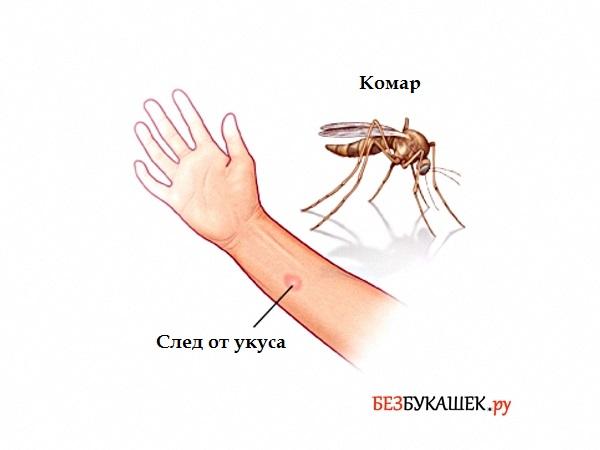 След от укуса комара