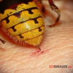 Действия после укуса осы