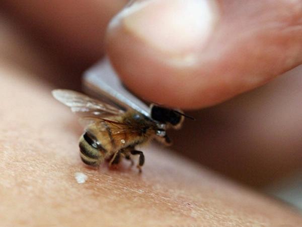 Лечение с помощью укусов пчелами