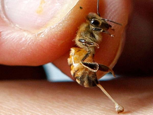 Укусила пчела
